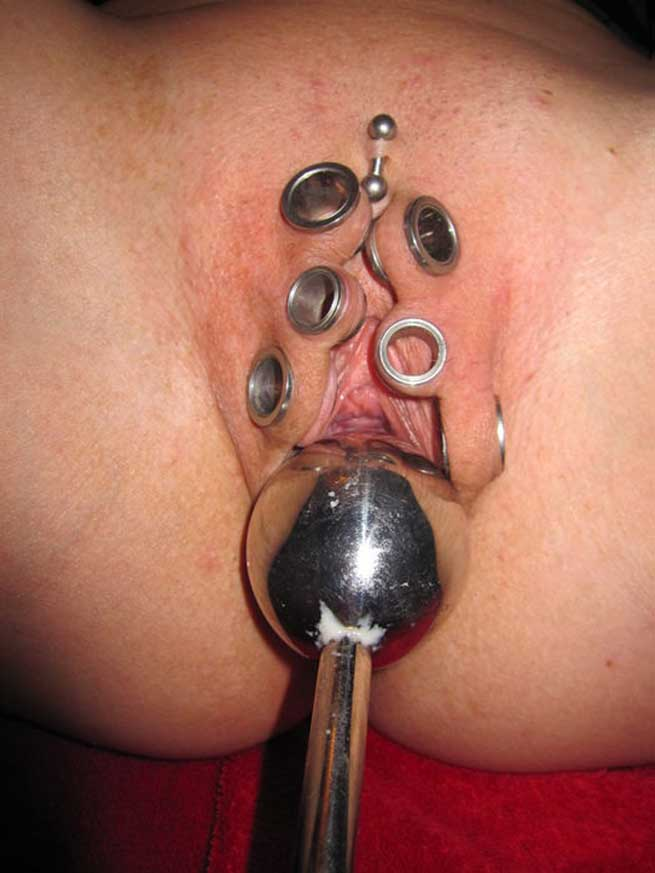 Medical health penis penetrate cervix