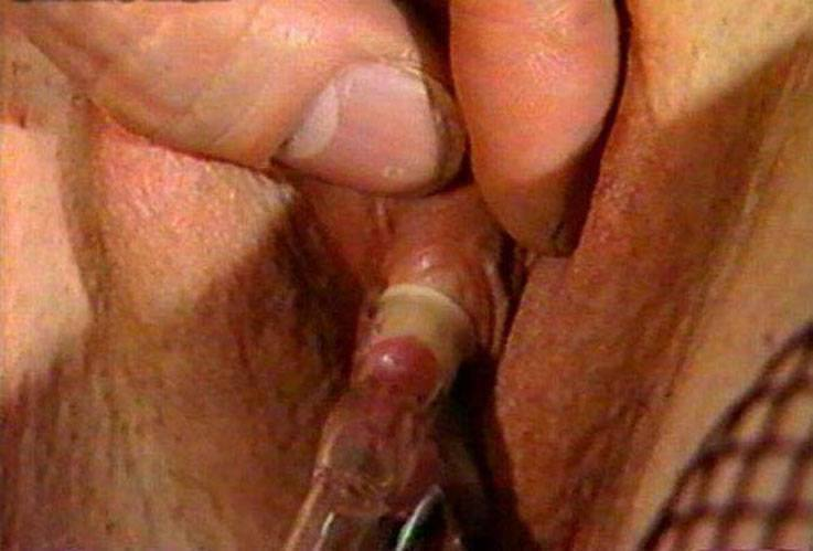 Pity, that causes clitoris pain useful