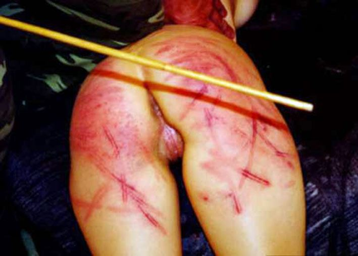 Bloody ass caning