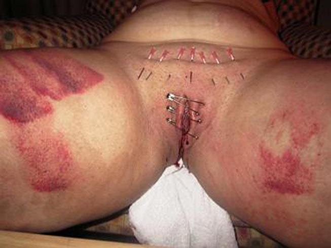 needles piercing cbt clit torture