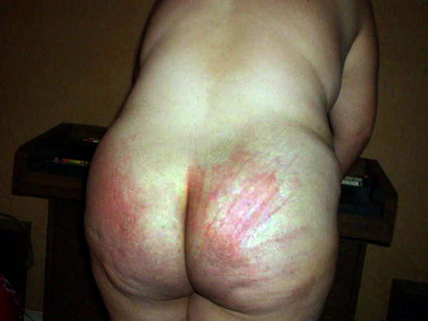 sex pictures butts Bruised